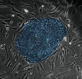 Stem_cell_colony03-m_M